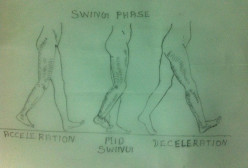 Gait Training – Swing Phase – An Analysis – Variations in Normal Gait