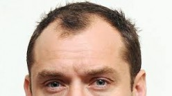 Treat Baldness At Home: 10 Home Remedial Measures