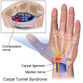 Carpal Tunnel Syndrome Treatment and Prevention