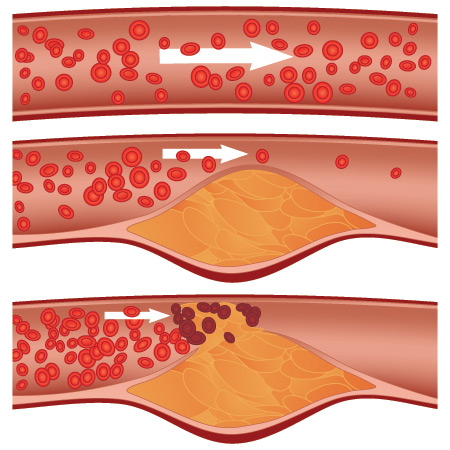 Atherosclerosis - build-up of plaque in blood vessels