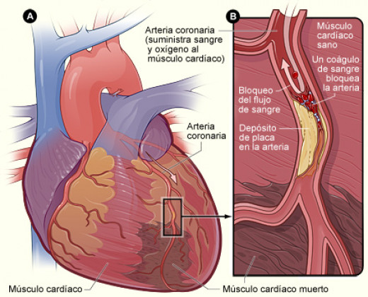 Diagram of heart attack by National Heart Lung and Blood Institute (NIH)
