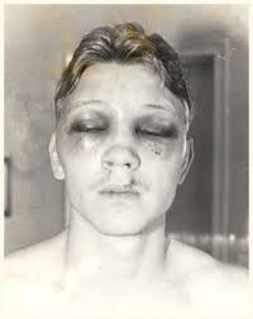 Luis Resto and his corner an Panama Lewis were sent to prison for removing stuffing from boxing gloves which resulted in Collins being severely injured.