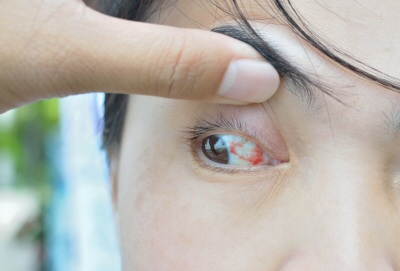 A doctor's advice should be followed when using corticosteroid eye drops for an eye problem.