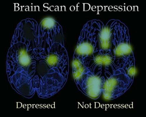how to live with depression without medication
