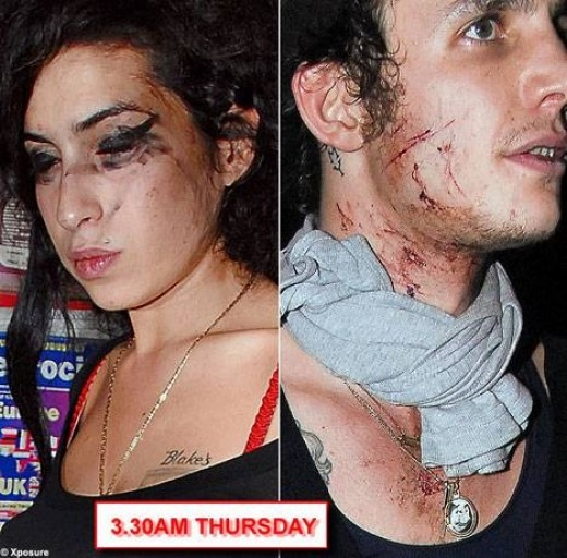 Amy Winehouse's Bloody Fight
