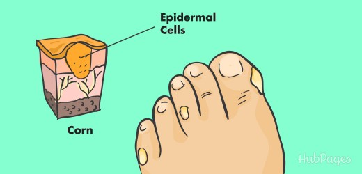 How to get rid of corns on your toes home remedies
