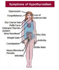 Symptoms of Hyperthyroidism