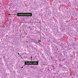 Histology of papillary carcinoma