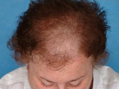 Androgenetic Alopecia [3]