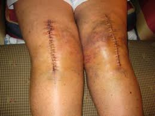 Not my knees, but this is what it looks like.