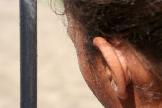 Dry scaly patch behind ear