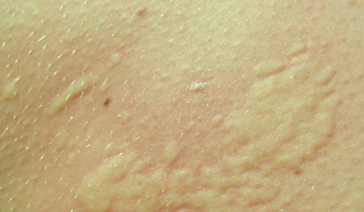 Chlorine Rash Symptoms Causes Treatment Pictures