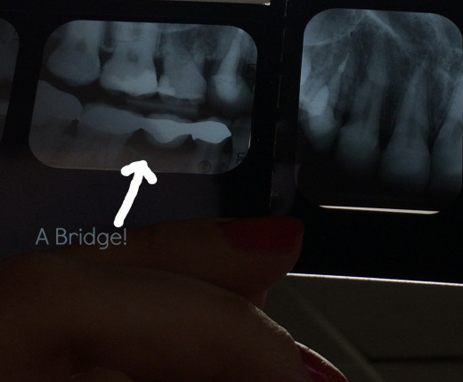Here is a bridge I had done shortly before these x-rays were taken.