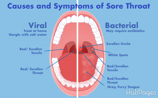 What Can I Do To Alleviate Bed Sores At Home