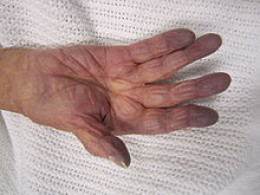 Bluish and possibly numb fingertips due to low levels of oxygen in the blood