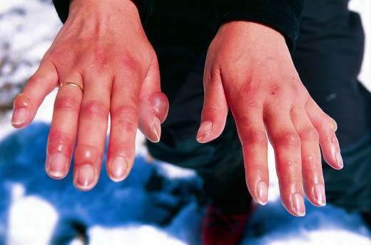 After chilblains, numbness in the fingers may persist for several days