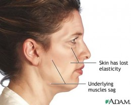 Sagging or wrinkled skin happens naturally with advancing age. Folds and fat deposits appear around the neck. The jawline grows jowly. Deep creases may appear from nose to mouth. Graphics Courtesy the National Institutes of Health.