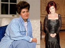 Sharon Osbourne Before and After Surgery