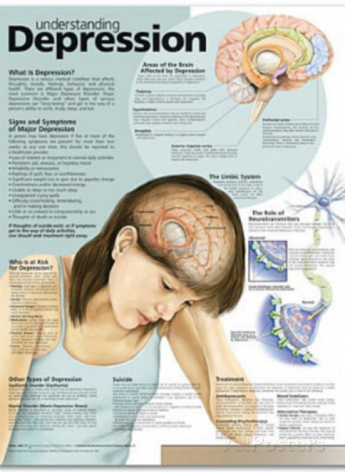 Understanding Depression Anatomical Chart 2nd Edition Poster Print