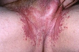Pennis Itching Home Remedy