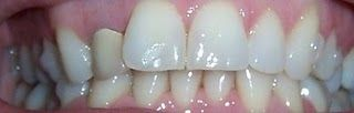 Invisalign Before and After Pictures- set 5