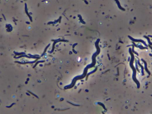 Spirillum Bacteria (Spiral or curvy)