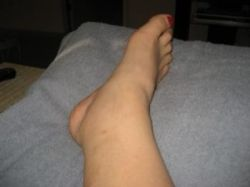 My ankle AFTER most of the swelling went down - you can see the puncture from the opening where they did the laser thing