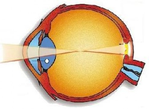 Diagram of the human eye.