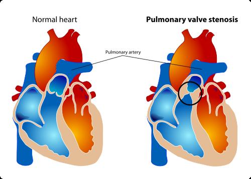 Pulmonary stenosis.