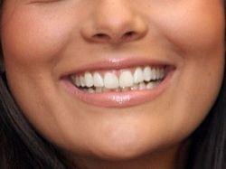 Girl Smiling Showing Beautiful Healthy Teeth