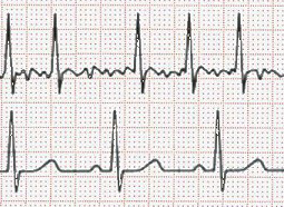 EKG Atrial Fibrillation vs Sinus Rhythm