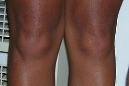 Knees (CC.BY.2.0)
