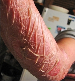 photo: poison-ivy.org  Skin on arm drying out as large blisters subsided