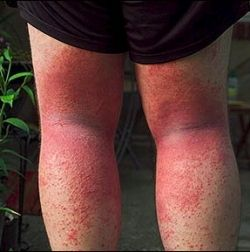 photo: poison-ivy.org  Allergic reaction to poison ivy after skin contact on back of legs