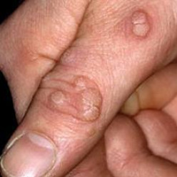 Duct Tape to remove warts