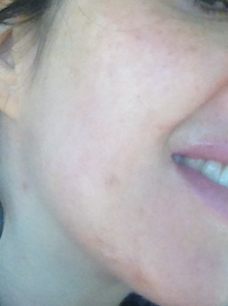 Solar Lentigos are visible on cheeks and neck before IPL treatment