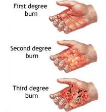 Burn chart