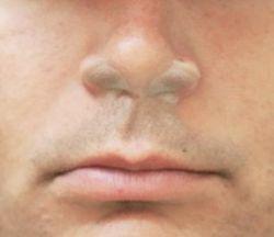 Nasal screens on nostrils
